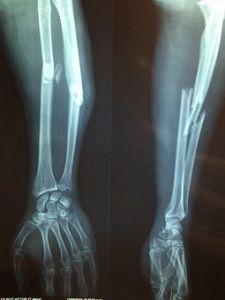 fracture bone