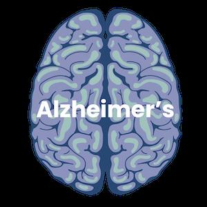 Alzheimer's Dementia Guide